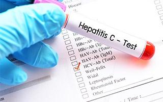 Fortschritte bei der Behandlung von Hepatitis C ...